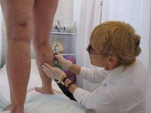 Фото: Як полтавцям лікувати варикоз та запобігти йому