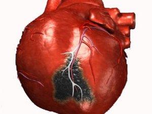 Фото: Інфаркт міокарда частіше розвивається в чоловіків