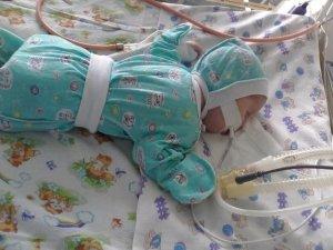 Фото: Малюку з Полтави терміново потрібна допомога на лікування