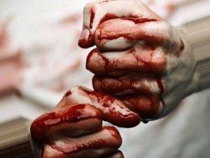 Фото: У Горішніх Плавнях 9 осіб по-звірячому побили атовця, – волонтер Ксенія Бикова